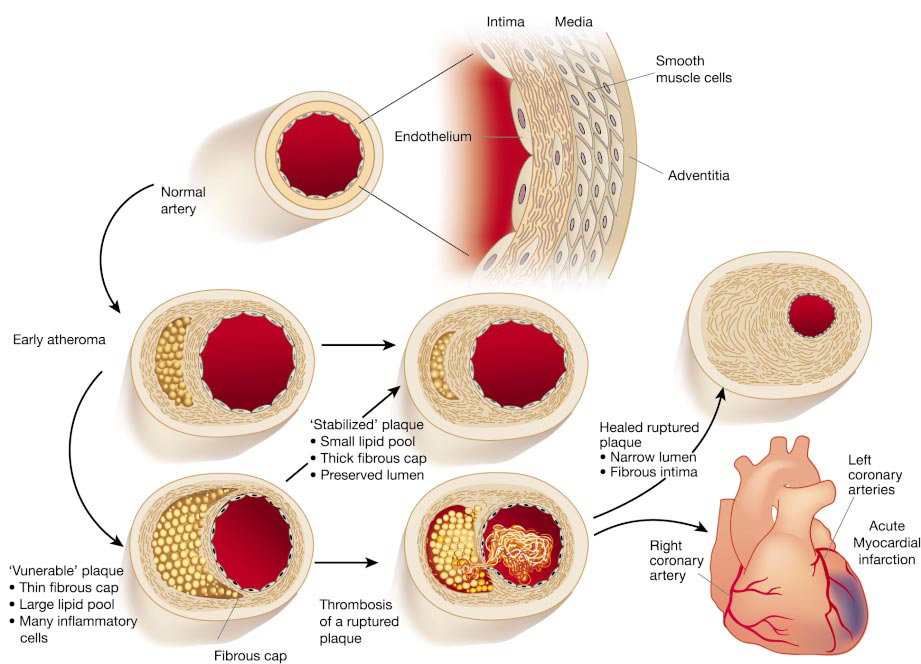 Views of progression from normal artery to acute myocardial infarction and sudden death